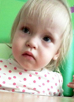 Кира Волкова, 2 года, детский церебральный паралич, требуется лечение. 199620 руб.
