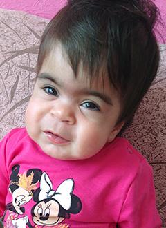 Соня Ахмад, 1 год, редкое генетическое заболевание – мукополисахаридоз 1 типа, синдром Гурлер, спасут трансплантация костного мозга и лекарства. 2486543 руб.