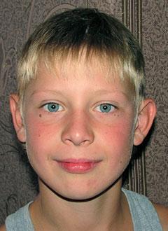 Данил Шадрин, 11 лет, двусторонняя сенсоневральная тугоухость 4 степени, требуются слуховые аппараты. 117480 руб.