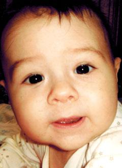 Арсений Полосин, 8 месяцев, ювенильный миеломоноцитарный лейкоз, нужны лекарства. 827515 руб.