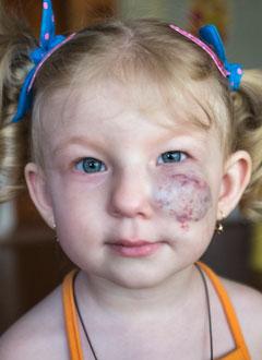 Надя Орлова, 2 года, гиперплазия кровеносных сосудов в области левой половины лица, требуется операция. 545000 руб.