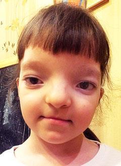 Аня Мальцева, 5 лет, орбитальный гипертелоризм (порок развития черепно-лицевого скелета), требуется подготовка к операции и изготовление импланта. 265000 руб.