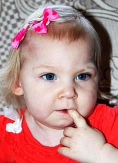 Милана Макарова, 2 года, симптоматическая эпилепсия, спастический тетрапарез, требуется лечение. 199620 руб.