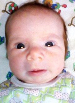Маша Колпакова, 3 месяца, врожденная деформация стоп, спасет лечение. 250000 руб.