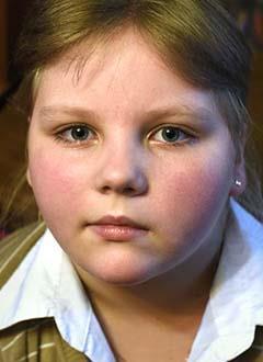 Саша Копкина, 9 лет, эпилепсия, энцефалит Расмуссена с поражением правого полушария, требуется операция. 544380 руб.