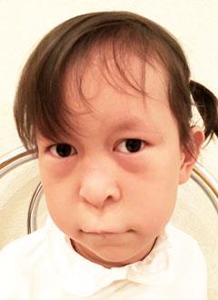 Шара Абдулхаикызы, 6 лет, врожденная двусторонняя косолапость, рецидив, требуется лечение. 155000 руб.