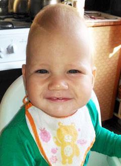 Максим Дерюгин, 1 год, деформация черепа, требуются компьютерное моделирование операции и импланты для реконструкции черепа. 490000 руб.