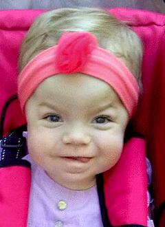 Маша Кирюхина, 1 год, редкое генетическое заболевание – мукополисахаридоз 1 типа, синдром Гурлер, спасут трансплантация костного мозга и лекарства. 1797332 руб.