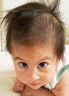 Марк Баринян, 6 месяцев, врожденная деформация черепа, требуются биорезорбируемые (саморассасывающиеся) пластины для операции. 710000 руб.