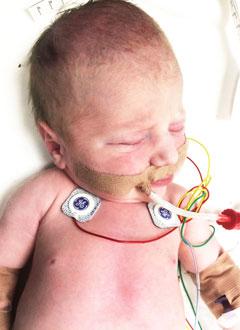 Миша Парамонов, 3 дня, сложный врожденный порок сердца, спасет операция. 663903 руб.