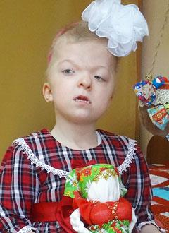 Катя К., 7 лет, синдром Апера, требуется операция в клинике Грейт Ормонд Стрит (Лондон, Великобритания). 8517438 руб.