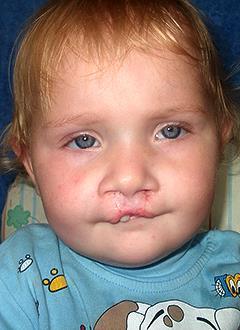 Надя Михальченко, 1 год, расщелина верхней губы, альвеолярного отростка, твердого и мягкого нёба, требуется операция. 193940 руб.