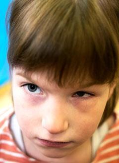 Наташа Ф., 7 лет, органическое поражение головного мозга, проблемы со слухом и зрением, дисплазия (недоразвитие. – Русфонд) тазобедренных суставов, требуются денежные средства на содержание в Свято-Софийском детском доме на год. 516000 руб.
