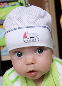 Артем Головкин, 6 месяцев, деформация черепа, требуется лечение шлемами. 180000 руб.