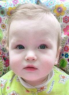 Дима Минаев, 9 месяцев, врожденный порок развития правой кисти, требуется операция. 192240 руб.