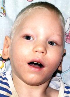 Сёма Коваленко, 2 года, детский церебральный паралич, требуется лечение. 199620 руб.