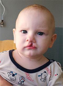 Тимур Коваленко, 8 месяцев, врожденная полная расщелина верхней губы, спасет операция. 82599 руб.
