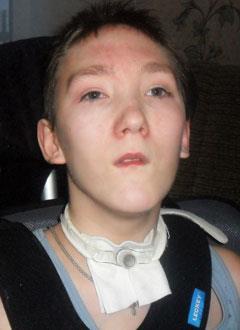 Миша Захаров, 16 лет, последствия закрытой черепно-мозговой травмы, требуются электроподъемник и ортезы. 160307 руб.