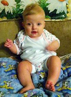 Арсений Ефименко, 10 месяцев, деформация черепа, требуются дистракторы для операции. 660000 руб.