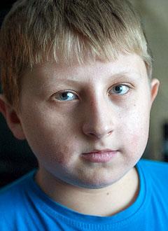 Вася Лихватских, 13 лет, несовершенный остеогенез, требуется курсовое лечение. 920000 руб.