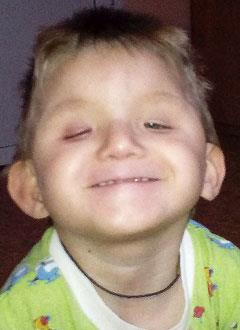 Сережа Юрков, 3 года, врожденная расщелина твердого, мягкого нёба и язычка, требуется операция. 116307 руб.