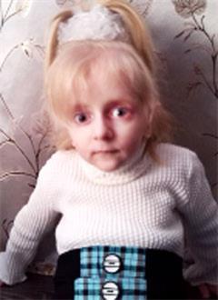Лиза Ставицкая, 4 года, первичный иммунодефицит, требуется лечебное питание. 123440 руб.