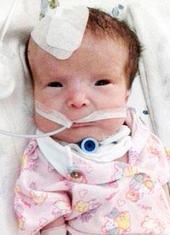 Маша Николаева, 3 месяца, синдром Пьера Робена (патология развития костей лица, нёба), спасет операция, требуется дистракционный аппарат. 448393 руб.