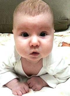 Соня Герц, 4 месяца, врожденный порок сердца, спасет операция. 320400 руб.