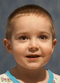 Даня Дубатов, 2 года, врожденная двусторонняя лучевая косорукость тяжелой степени, требуется операция. 194789 руб.