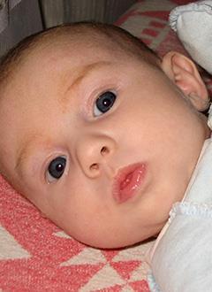 Аня Овчинникова, 2 месяца, врожденный порок сердца, спасет операция. 491280 руб.