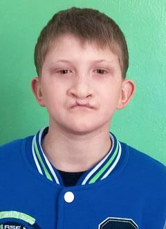 Вадим Романов, 12 лет, рубцовая деформация верхней губы и носа, требуется операция. 106531 руб.