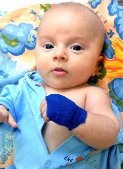 Демьян Демкив, 9 месяцев, несовершенный остеогенез, требуется курсовое лечение. 460000 руб.