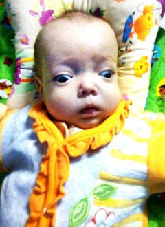 Карина Николаева, 10 месяцев, тяжелое наследственное заболевание – остеопетроз, спасет трансплантация костного мозга, требуются лекарства. 1002833 руб.
