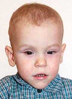 Максим Мелкозеров, 2 года, отслойка сетчатки, требуются операции. 284184 руб.
