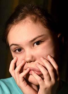 Вика Богданова, 11 лет, частичная макросомия (гигантизм) левой половины лица, требуются этапные операции. 466925 руб.