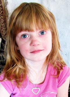 Настя Фомикова, 6 лет, двусторонняя тугоухость 2–3 степени, требуются слуховые аппараты. 129224 руб.