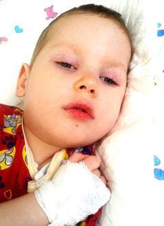Алеша Атаров, 4 года, симптоматическая эпилепсия, спасет установка стимулятора блуждающего нерва. 1248890 руб.