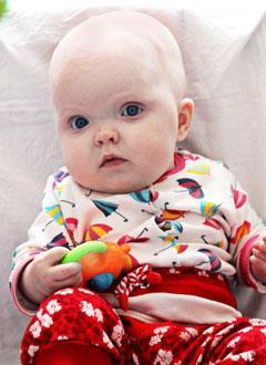 Маша Белоусова, 8 месяцев, двусторонняя тугоухость 4 степени, требуются слуховые аппараты. 160363 руб.