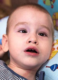 Родион Пономарев, 2 года, детский церебральный паралич, спастический тетрапарез, требуется лечение. 199430 руб.