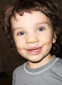 Влад Елфимов, 5 лет, послеоперационная рубцовая деформация губы и носа, расщелина альвеолярного отростка верхней челюсти, дефект развития челюсти и зубных рядов, требуется ортодонтическое лечение. 170000 руб.