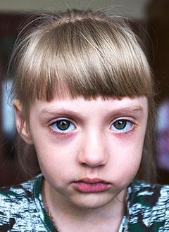 Кира Каляганова, 5 лет, левосторонний лицевой паралич, требуется многоэтапное хирургическое лечение. 748650 руб.