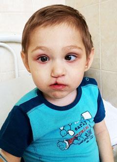 Кирюша Лескин, 3 года, двусторонняя тугоухость 4 степени, требуются слуховые аппараты. 219062 руб.