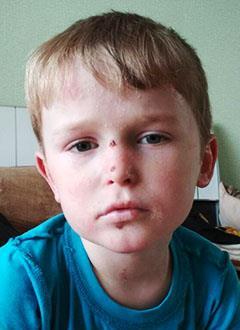 Максим Кутьин, 5 лет, буллезный эпидермолиз, требуется лечение и перевязочные средства на шесть месяцев. 939411 руб.