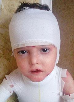 Исмаил Елизаров, 4 года, буллезный эпидермолиз, требуется лечение. 450190 руб.