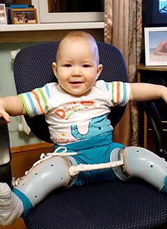 Арсений Франчук, 1 год, деформация черепа, требуется лечение специальными шлемами. 180000 руб.
