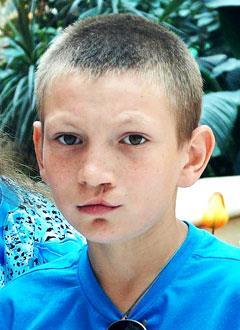 Володя Еременко, 13 лет, послеоперационная рубцовая деформация верхней губы, носа, твердого и мягкого нёба, требуется операция. 108227 руб.
