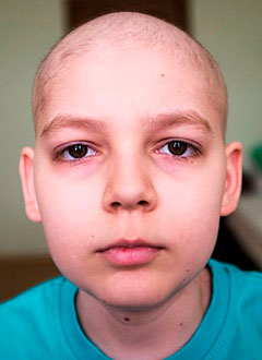 Магомед Хамзатханов, 14 лет, лимфома Ходжкина, необходимо лекарство. 1182000 руб.