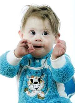 Соня Андриевская, полтора года, врожденный порок сердца, требуется эндоваскулярная операция. 339063 руб.