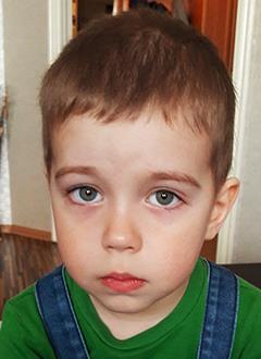 Денис Колембет, 4 года, адренолейкодистрофия, спасет трансплантация костного мозга, требуются поиск и активация донора в международном регистре и лекарства. 2975330 руб.