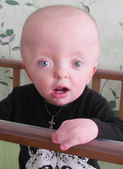 Вова Ткаченко, полтора года, синдром Апера (врожденная аномалия развития черепа, рук, ног), требуются этапные операции. 187762 руб.